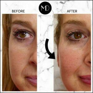 Facial Rebalancing - Joanna Cheeks-1000