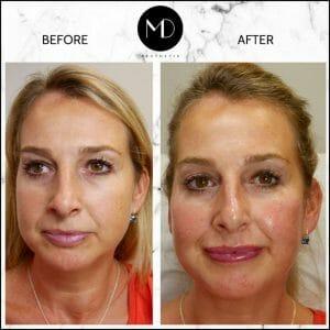 Facial Rebalancing - Joanna Lips & Cheeks-1000