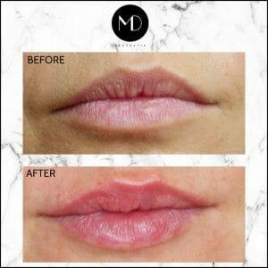 Lip Reshaping - Gemma Lips Seperate-1000