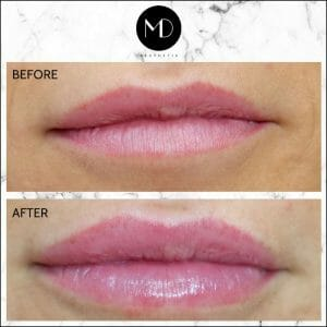 Lip Reshaping - Jemma Lips-1000