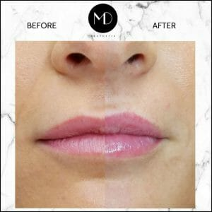Lip Reshaping - Jemma Lips Side by Side-1000