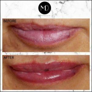 Lip Reshaping - Joanna Lips-1000