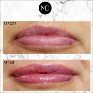 Lip Reshaping - Joanna Second Lips-1000