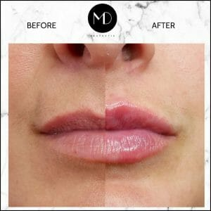 Lip Reshaping - Louise Lips Side by Side-1000