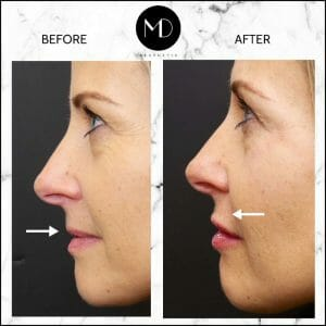 Lip Reshaping - Paula Side View-1000