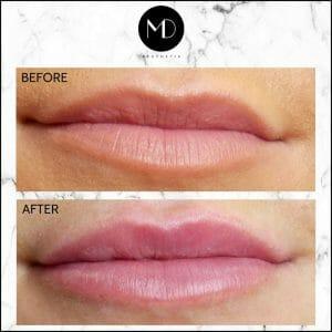 Lip Reshaping - Rachel Lips-1000