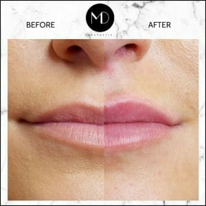 Lip Reshaping - Rachel Lips Side by Side-1000