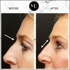 Nose reshaping - Joanna Nose-1000