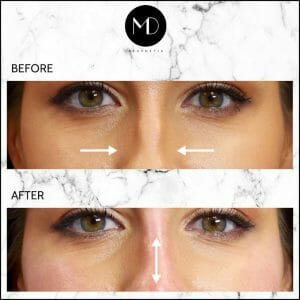 Nose reshaping - Rachel Nose Front-1000