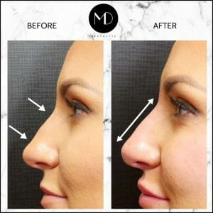 Nose reshaping - Rachel Side Nose-1000