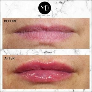 Paula's Lips Seperate-1000