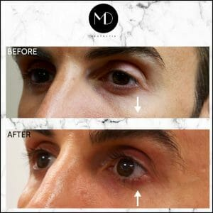 Under Eye Rejuvenation - Marco Tear Trough-1000
