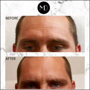 Wrinkle-Relaxing-Treatment-Before-After